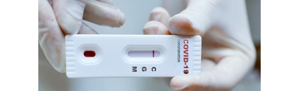 Enel-med wprowadza do oferty test na obecność przeciwciał koronawirusa Sars-CoV-2