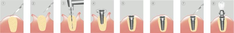 etapy leczenia implantologicznego