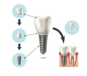 czym jest implant kostny