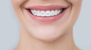 Problemy ortodontyczne